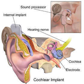 Kayde Cochlear Cause Logo